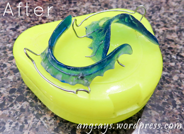 How To Clean Retainers Angela Saysangela Says