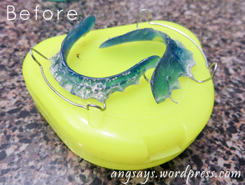 Cleaning retainers